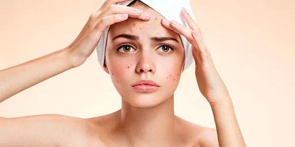 Migliori offerte spazzole elettriche pulizia viso presenti su Amazon