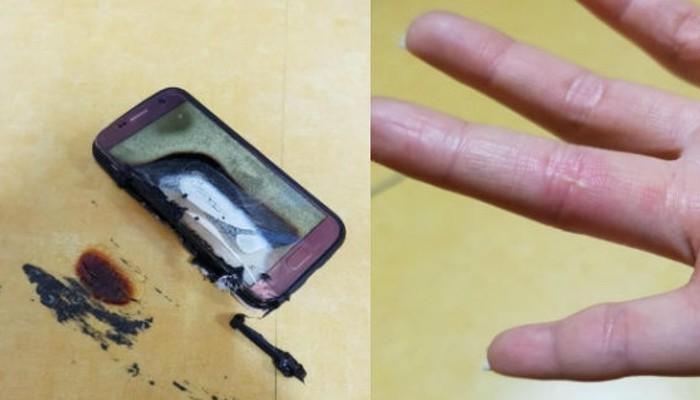 Samsung Galaxy S7, torna la paura, un nuovo esemplare esplode in mano ad un utente